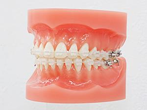 おとなの歯列矯正