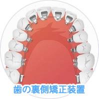 歯の裏側矯正装置