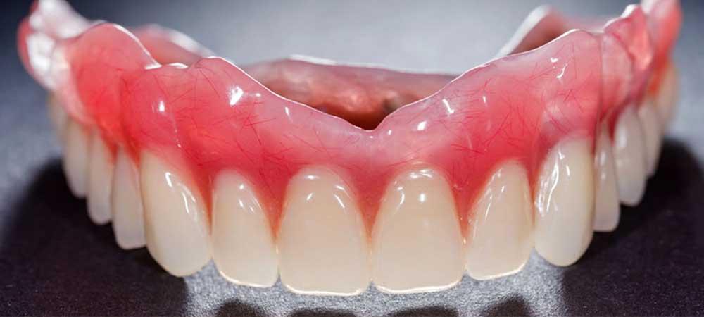 精巧な入れ歯