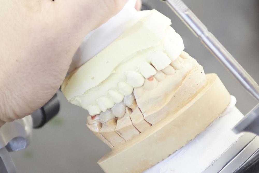 義歯の調整