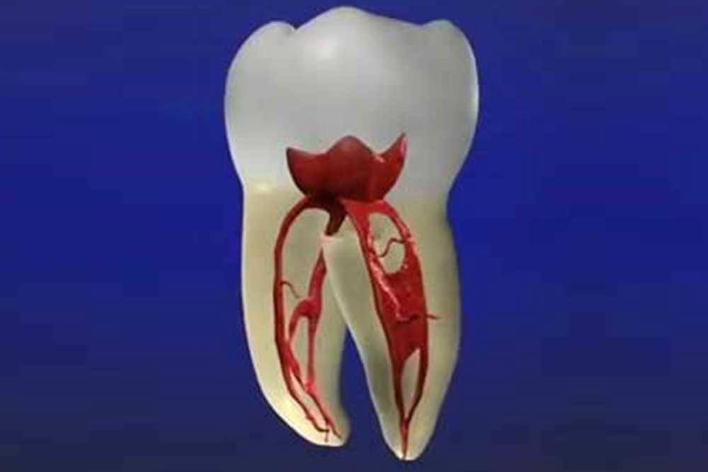 虫歯・歯周病