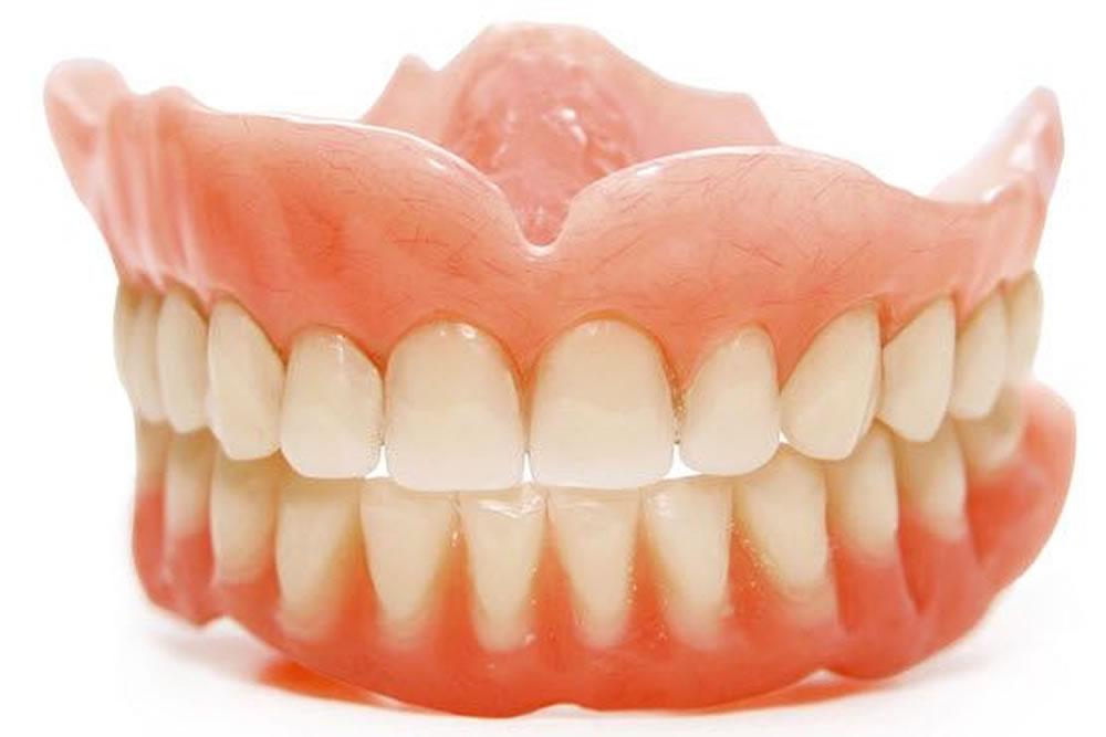 義歯(入れ歯)の作製