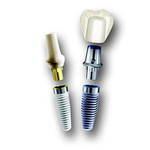 インプラント治療(口腔外科)