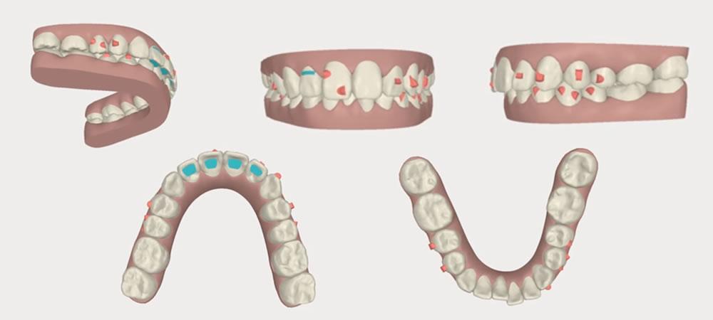 矯正歯科・小児矯正治療