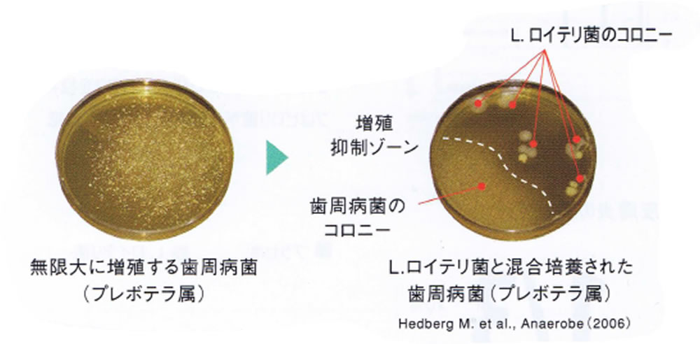 「細菌療法」バクテリアセラピー